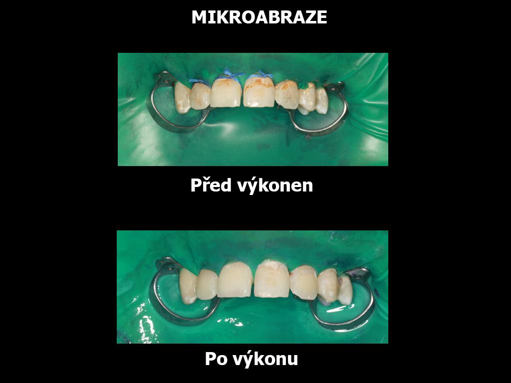 mirkoabraze